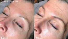 Microblading Artist in Indy